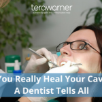 Can You Really Heal Your Cavities? A Dentist Tells All